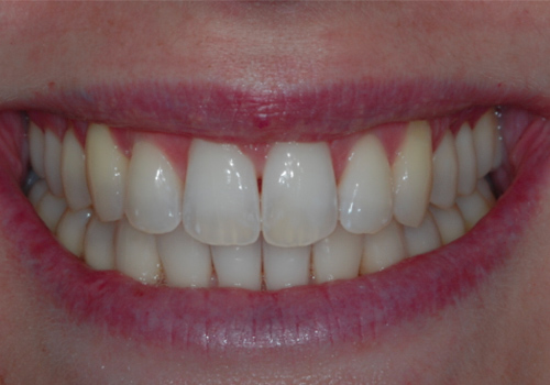 Studio Dentistico Raimondo | Caso02