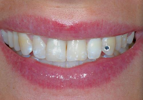 Studio Dentistico Raimondo | Caso03