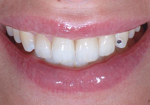 Studio Dentistico Raimondo | Caso04