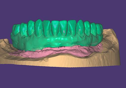 Studio Dentistico Raimondo | Caso05