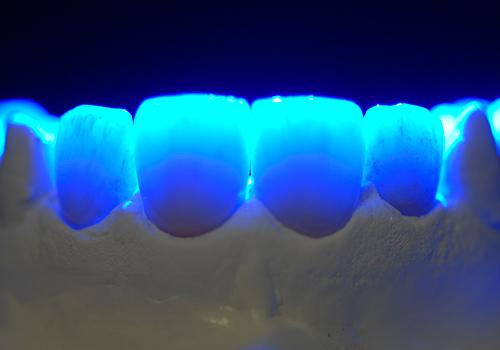 Studio Dentistico Raimondo | Caso07