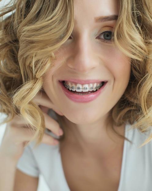 Studio Dentistico Raimondo | Trattamenti ortodonzia tradizionale