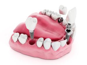 impianti dentali